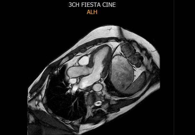 MRI-CARDIAC-FINAL-2